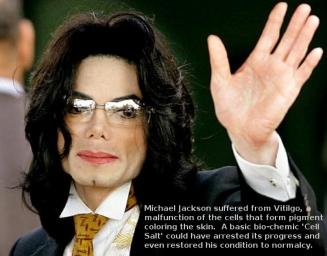 קלורסון לובו בוים: Cure for Vitiligo – The Michael Jackson