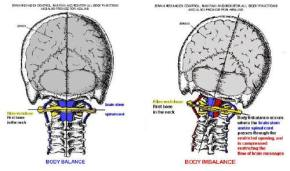 misaligned subluxation