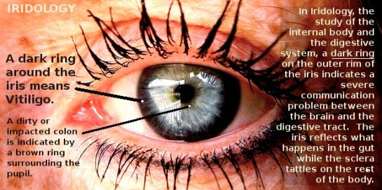 Vitiligo-dark ring outer iris txt