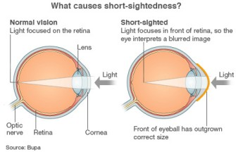 myopia-via-bbc-from-bupa